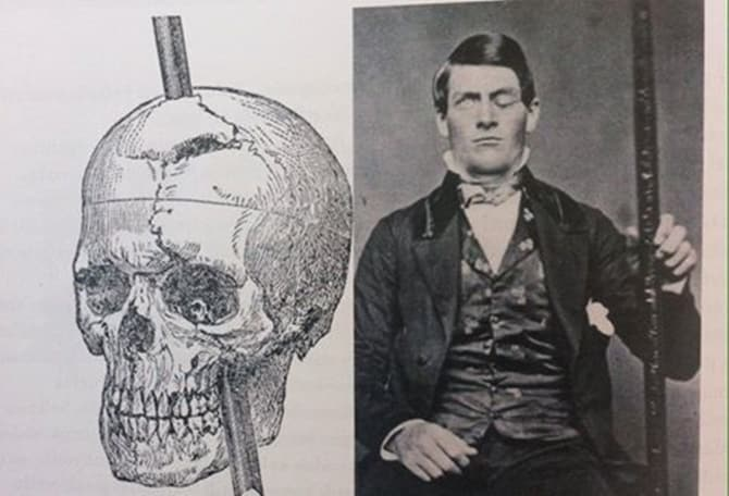 Photo of Phineas Gage'in Beyin Hasarı Vakası